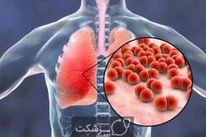شایع ترین بیماری های فصل پاییز | پزشکت