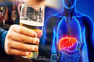 ترک الکل در منزل | پزشکت