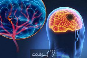شایعترین علائم اختلالات عصبی | پزشکت