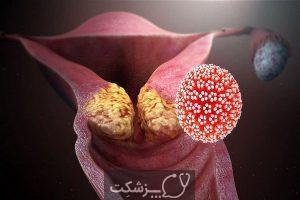 غربالگری سرطان دهانه رحم با پاپ اسمیر | پزشکت