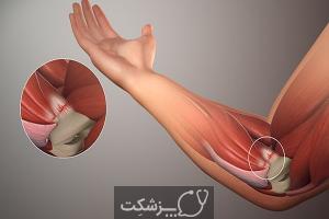 شایع ترین بیماری های عضلانی اسکلتی | پزشکت