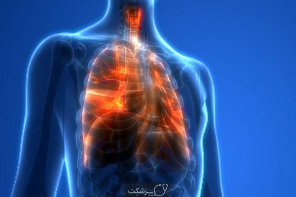 خطر انتقال کرونا در سیگاری ها | پزشکت