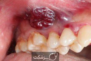 شایع ترین اختلالات دندانپزشکی | پزشکت