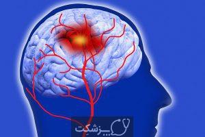 شایع ترین بیماری های سیستم عصبی | پزشکت