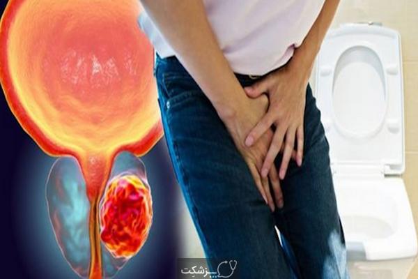 مرحله 4 سرطان پروستات | پزشکت