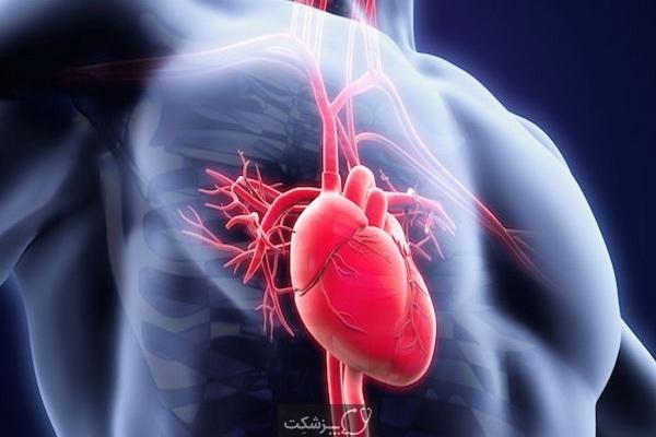 التهاب عضله قلب چیست؟ | پزشکت