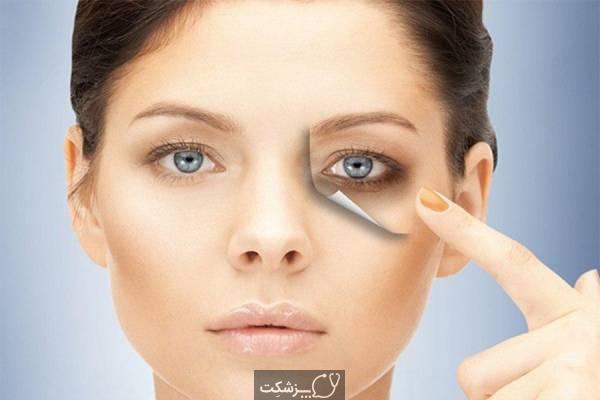 تیرگی دور چشم | پزشکت