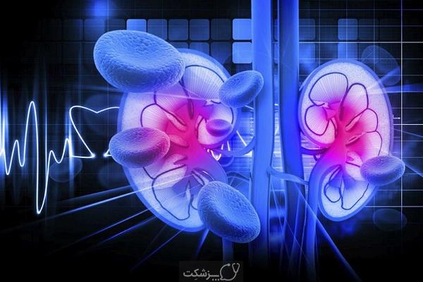 نفروپاتی دیابتی | پزشکت
