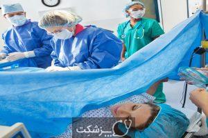 پارگی رحم | پزشکت