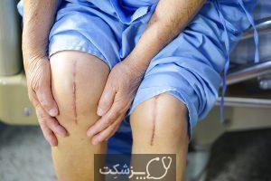 تعویض مفصل زانو | پزشکت