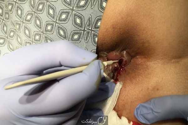 جراحی بواسیر چگونه انجام می شود؟ | پزشکت