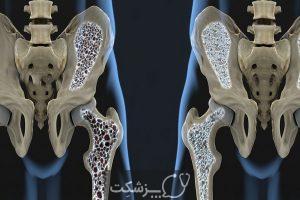 پوکی استخوان | پزشکت