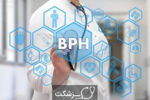 هایپرپلازی خوش خیم پروستات | پزشکت