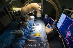 ناهنجاری های شریانی | پزشکت