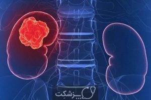 سرطان کلیه | پزشکت