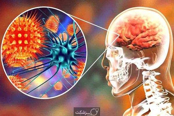 التهاب مغزی | پزشکت