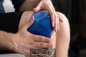 شایع ترین علت های کبودی بدن | پزشکت
