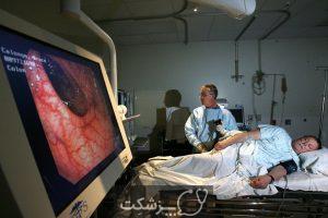 سندرم روده تحریک پذیر | پزشکت