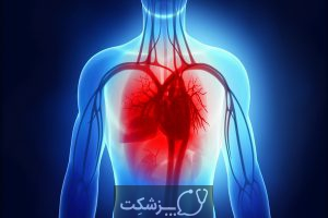 التهاب عضله قلب | پزشکت