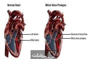 پرولاپس دریچه میترال | پزشکت