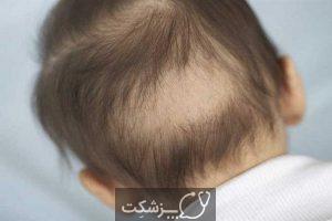 ریزش مو در کودکان | پزشکت