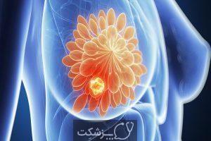 شایع ترین عوامل خطر سرطان ها   پزشکت