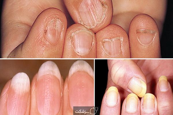 وضعیت ناخن ها و علائم بیماری ها | پزشکت