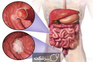 کولیت اولسراتیو | پزشکت