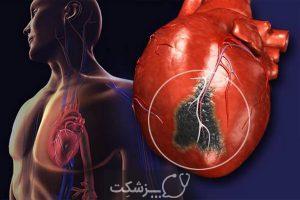 پانزده بیماری سیستم گردش خون | پزشکت