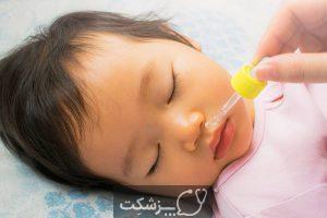 ترک خوردن لب های نوزاد | پزشکت