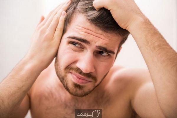 شایع ترین علل ریزش مو | پزشکت