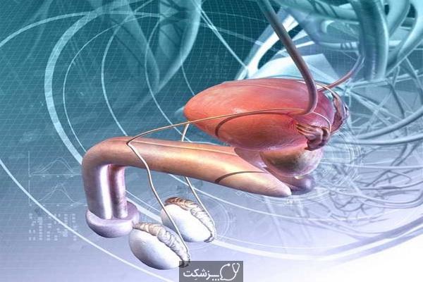 ارکیت یا التهاب بیضه   پزشکت