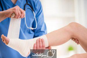 چگونه از زخم های دیابتی مراقبت کنیم؟ | پزشکت