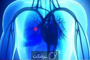 شایع ترین علائم لخته شدن خون | پزشکت