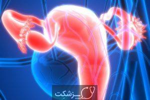 انسداد لوله های رحمی | پزشکت