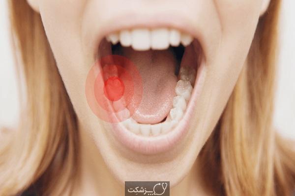 درد دندان را چگونه در خانه درمان کنیم؟ | پزشکت