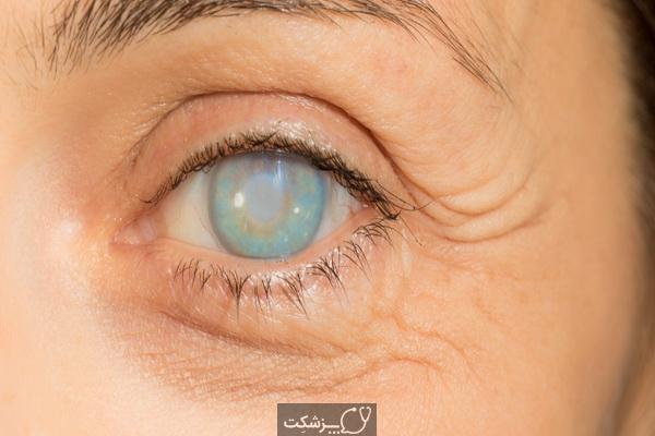 شایع ترین علل نابینایی | پزشکت