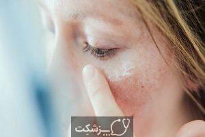 لکه های سفید روی پوست | پزشکت