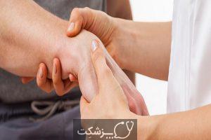شایع ترین علائم کمبود کلسیم | پزشکت