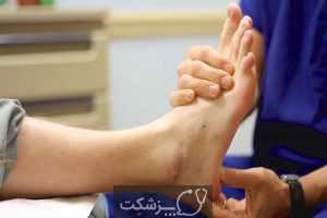 تشخیص رگ به رگ شدن از پیچ خوردگی پا | پزشکت
