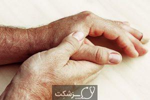 بیماری لایم | پزشکت