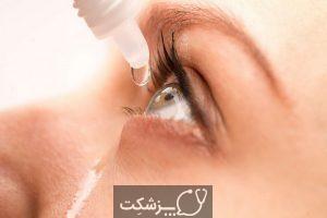 شایع ترین علل ترشحات چشمی   پزشکت