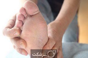 علل خارش پا در شب چیست؟ | پزشکت
