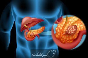 شایع ترین علل سرطان | پزشکت