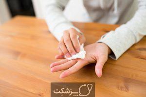 عرق کردن کف دست نشانه چیست؟ | پزشکت