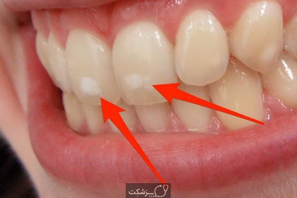 لکه های سفید روی دندان   پزشکت