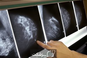 خطر سرطان پستان در زنان | پزشکت