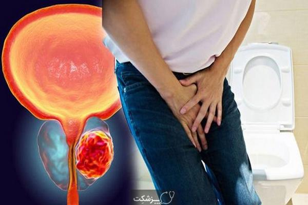 روش های پیشگیری از سرطان پروستات| پزشکت