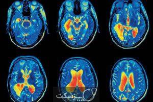 تصویر برداری پزشکی هسته ای | پزشکت