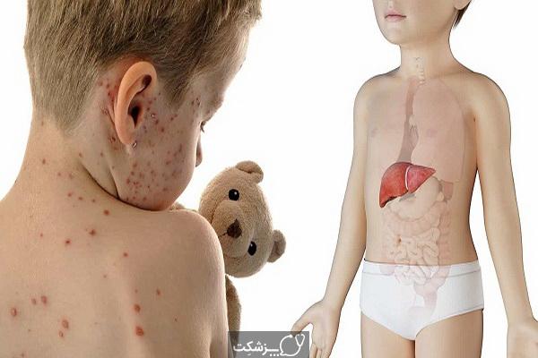 سندرم ری در کودکان | پزشکت
